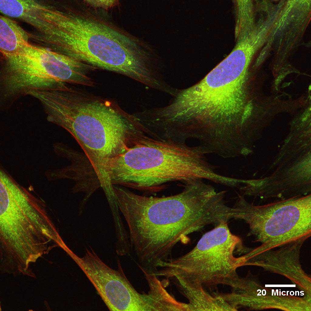 UCMSC Stammzellen