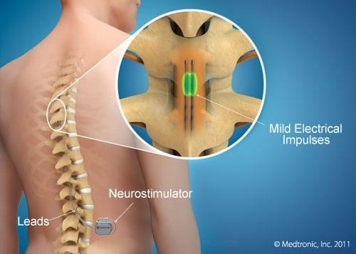 Epidurale Stimulation Stammzellbehandlung