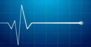 Elektrokardiogrammwellen auf einem digitalen Display